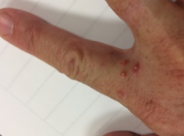 Fire Ant Stings on Hand